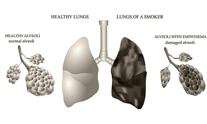 заболевания легких у курильщиков