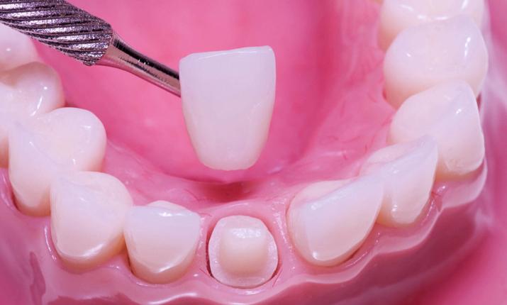 Какую функцию выполняет зубная коронка